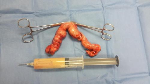 cat pyometra removed at Happy Pets Vets